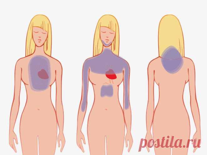 Como discernir el ataque cardíaco en un mes antes de que él pasará