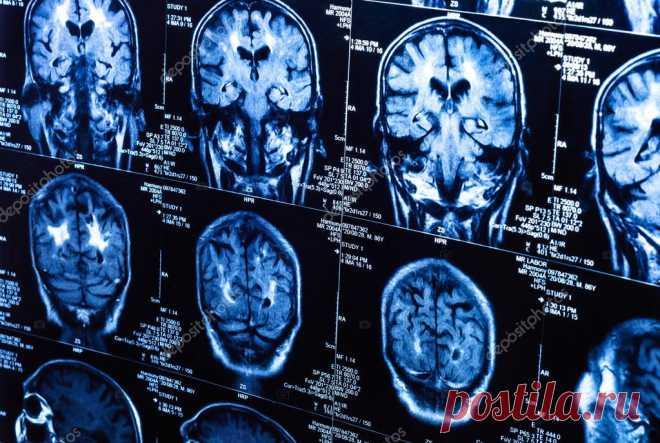 7 способов улучшения роста новых клеток мозга независимо от вашего возраста - Счастливые заметки