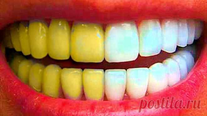 Голливудская улыбка за копейки: простые домашние методы отбеливания зубов