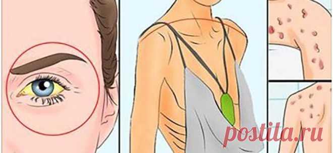 12 способов как ваше тело пытается сказать вам, что ваша печень повреждена! - Полезные советы красоты