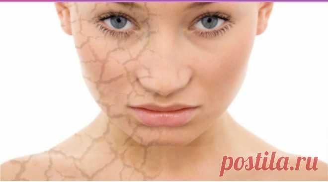 Уход за лицом. Сухой тип кожи? Шелушения на лице? Учимся правильно ухаживать.