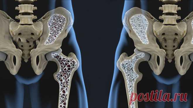 Почему кальций не стоит принимать при остеопорозе? Вся правда о кальции, и как правильно поддерживать костную ткань в тонусе | Маникюр,прически,макияж,красота | Яндекс Дзен