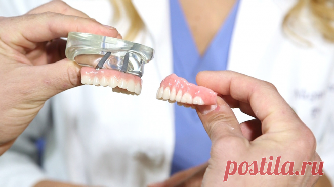 6 причин выбрать зубные импланты, а не ставить протез на свои зубы | Стоматология ROOTT | Яндекс Дзен