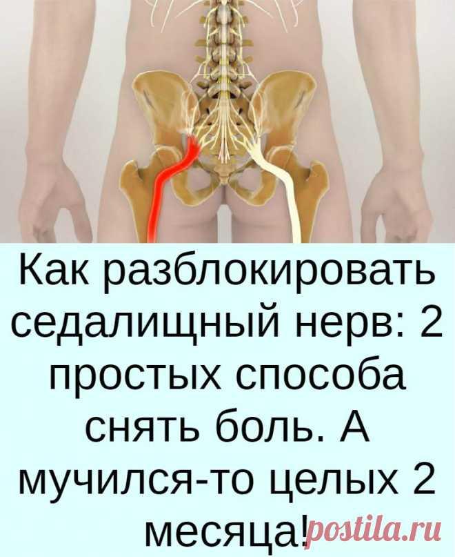 Как разблокировать седалищный нерв: 2 простых способа снять боль. А мучился-то целых 2 месяца!