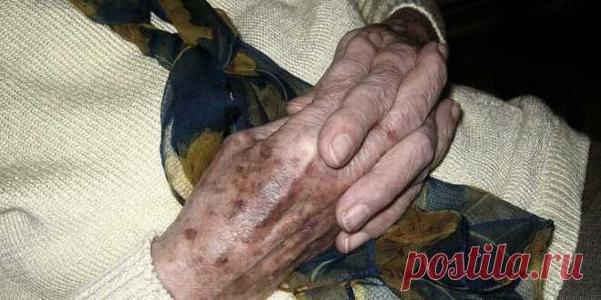 Вся ее рука была полностью покрыта этими коричневыми пятнами, но она знала, что с ними делать! - Советы на каждый день