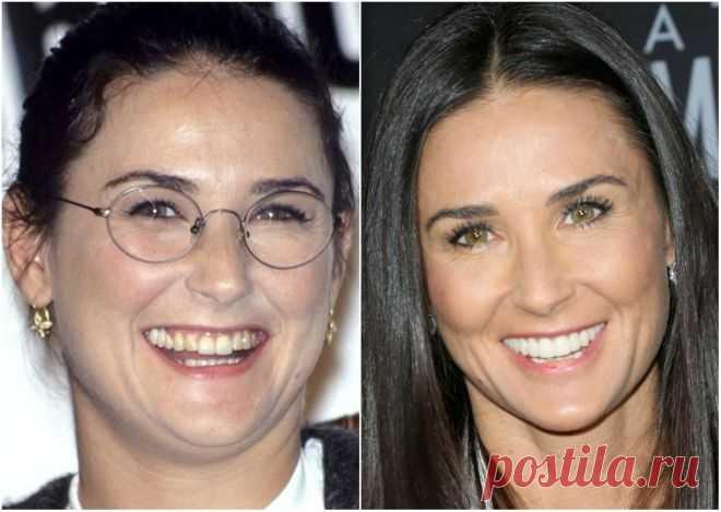 На все 32, или 32 голливудские улыбки «тогда» и «сейчас»