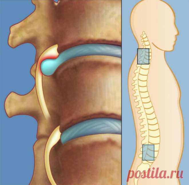 Узкий специалист: «Лечение межпозвоночной грыжи без лекарств, без операции! Нужно лишь упорно…»