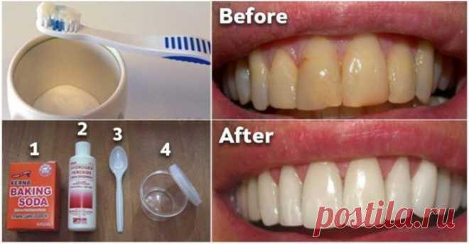Как избавиться от зубного налета и отбеливать зубы без дорогостоящих процедур. Вам понравится это средство! - Сайт для женщин Налет — бесцветная липкая пленка бактерий, которая накапливается на зубах.Если его не лечить, он продолжает расти и затвердевает в зубной камень, приводя к гингивиту или воспалению ткани десны. К счастью, есть естественное средство, которое предотвратит эти проблемы полностью и эффективно. Кокосовое масло — чрезвычайно полезное натуральное масло, к...