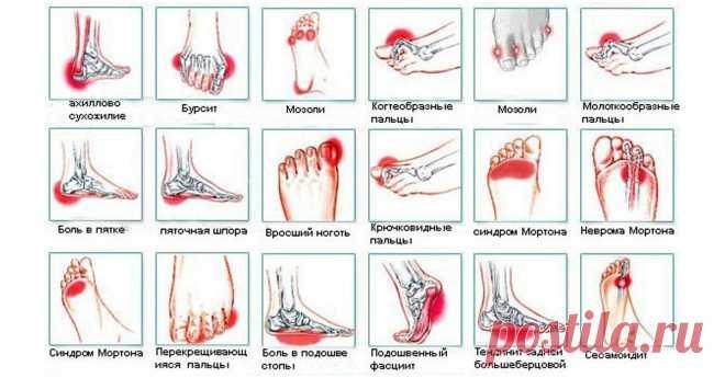 Всего за 5 минут вы избавитесь от боли в коленях, стопах, отёков, судорог и синдрома беспокойных ног  Это очень просто! У меня получилось, советую и вам попробовать! Боль в стопах может быть вызвана очень многими причинами и их более 25. Это включает в себя: артрит, подагру, грибок кожи и ногтей, моз…