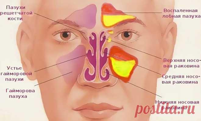 КАК ОЧИСТИТЬ ГАЙМОРОВЫЕ И ЛОБНЫЕ ПАЗУХИ?  Хронический гайморит и синусит могут не только быть причиной частых головных болей, но и являются источником инфекции, которая с током крови может разноситься по всему организму и вызывать заболевани…