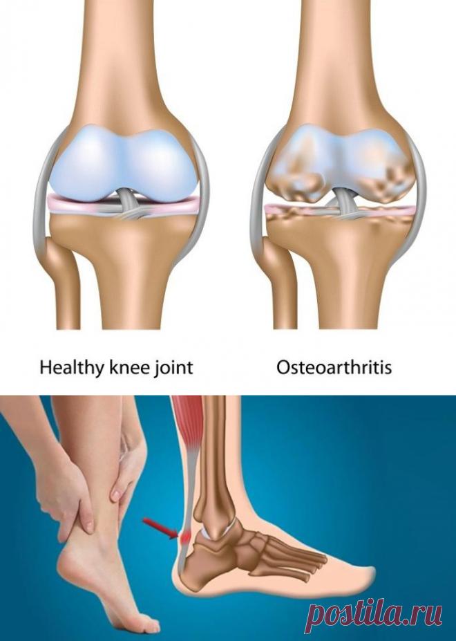 Восстанавливаем кости, сухожилия и суставы в кратчайшие сроки