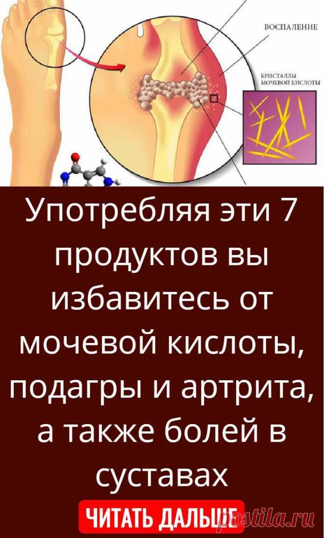 Употребляя эти 7 продуктов вы избавитесь от мочевой кислоты, подагры и артрита, а также болей в суставах