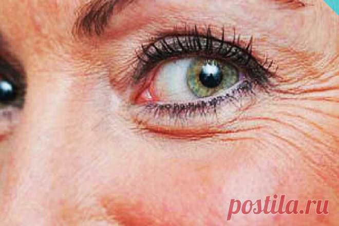 Уход за лицом. Маска от «гусиных лапок» у глаз: для освежения, увлажнения и разглаживания морщин