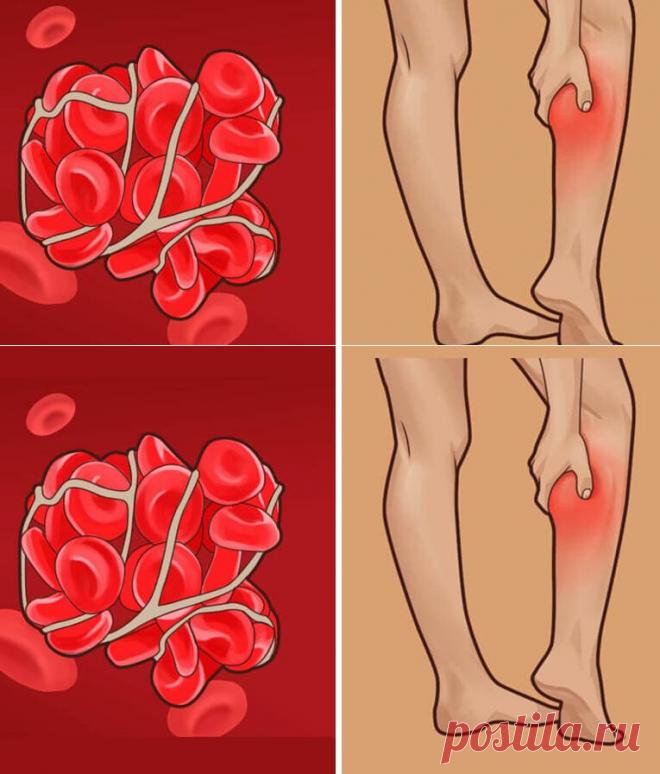 10 предупреждающих признаков плохого кровообращения! - Советы для женщин