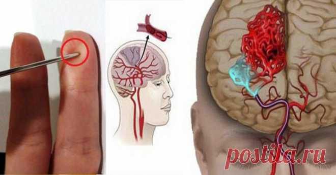 При инсульте игла спасет вашу жизнь! Научитесь оказывать первую помощь при инсульте | Психология