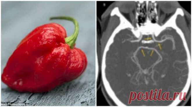 Американец попал в больницу после того, как съел самый острый перец в мире         (4 фото) . Чёрт побери