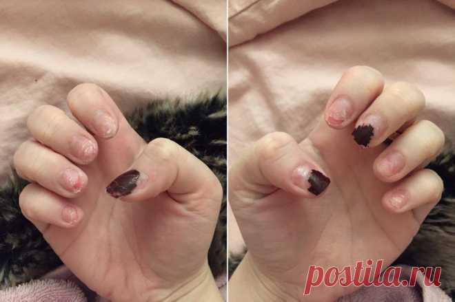 Если вы наращиваете ногти, вот к каким неприятностям вам надо быть готовой - Советы и Рецепты Без жертв не обойтись. Есть что-то шикарное в том, чтобы иметь длинные ногти идеальной формы. Именно поэтому многие женщины регулярно делают себе акриловые ногти. Но хотя наращенные ногти красиво выглядят и редко облазят, естьнесколько важных вещей, которые вам следует знать об этом модном поветрии. Возможно, вы слышали историю британского блогера-инфлюэнсера Амелии Перрин. Амелия носила акриловые …