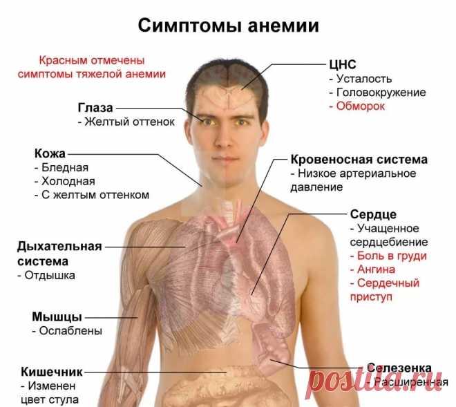 нехватка меланина в организме симптомы и лечение: 2 тыс изображений найдено в Яндекс.Картинках