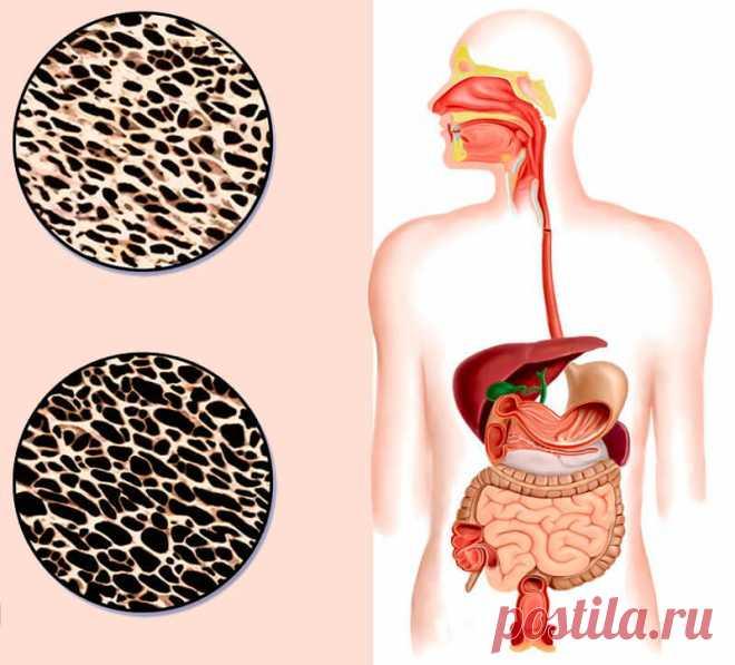 Хрупкие отношения: Как остеопороз связан с работой кишечника