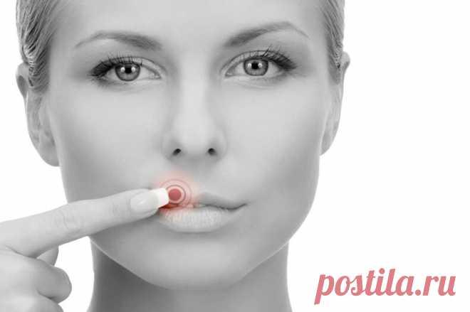 Лихорадка на губах — это герпес? Узнайте правду!