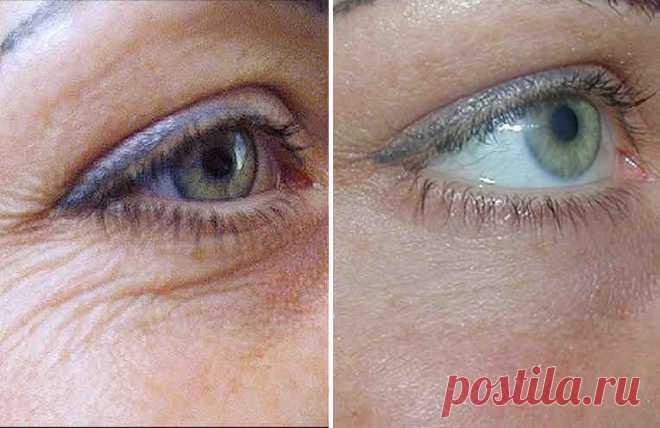 Домашний крем для глаз от морщин