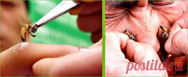 Использование живых пчел и продуктов пчеловодства уже многократно доказало свою эффективность, встретив только положительные отзывы пациентов. Лечение укусами пчел базируется на лечебном действии яда, поступающего в кровь человека через жало пчелы.