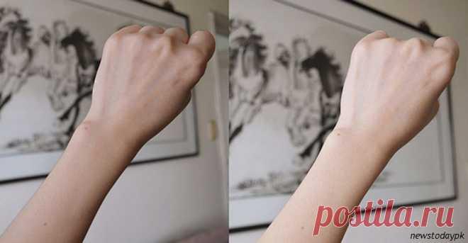 Как известно, возраст женщины выдают руки и шея. Бывает лицо выглядит свежим и подтянутым, а вот кожа на руках сморщенная,пишет Ankara Scene. Исправить это нельзя ни кремами, ни хирургическим вмешательством, ни походами к косметологу. Кожа на