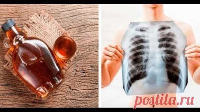 Как быстро очистить свои легкие, сосуды, предотвратить инсульт, диабет и нормализовать кровообращени