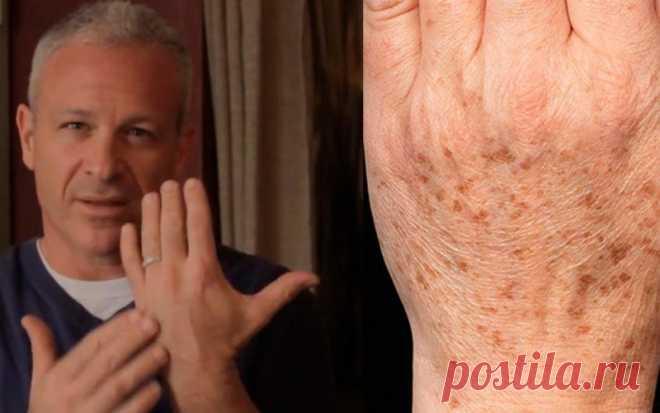 Американский доктор рекомендует: простой трюк быстро устранит пигментные пятна на коже! Всего 2 ингредиента! — Genius