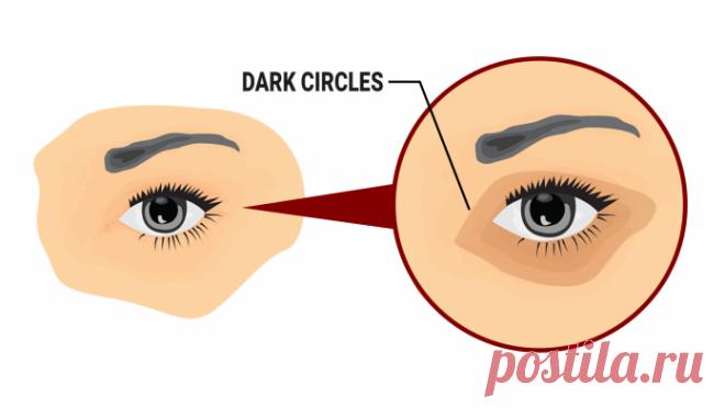 5 простых способов удаления темных кругов под глазами естественным способом Никто не любит выглядеть так, как будто они не спали всю ночь. В то время как плохой случай периорбитальных темных кругов, скорее всего, не вызовет такого драматического эффекта, они могут вызвать некоторое смущение и самосознание.  Круги является результатом того, что тонкий слой кожи под глазами
