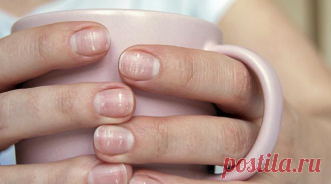 О каких болезнях нам расскажут ногти Знаете ли вы, что цвет, текстура и форма ногтей отражают состояние всего тела? Хотя некоторые симптомы ногтей безобидны, другие могут быть признаком хронического заболевания, даже рака. По данным Американской академии дерматологии, «ногти часто отражают наше общее состояние здоровья.