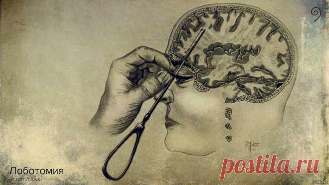 Лоботомия Варварская процедура заключалась в следующем: инструмент, похожий на нож для колки льда, вводили между веком и глазным яблоком; когда кончик ножа упирался в кость глазной впадины, по рукоятке били хирургическим молотком, остриё протыкало кость и проникало в лобную долю; далее совершалось вращательное движение рукояткой для рассечения нервных волокон мозга.