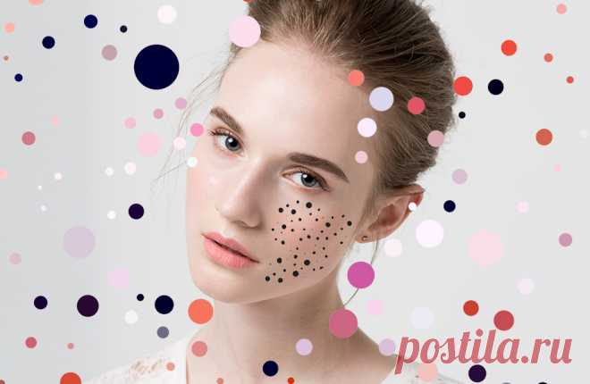 Виды прищей: причины и лечение соответственно виду - Beauty HUB