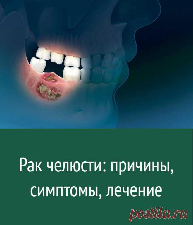 Рак челюсти: причины, симптомы, лечение