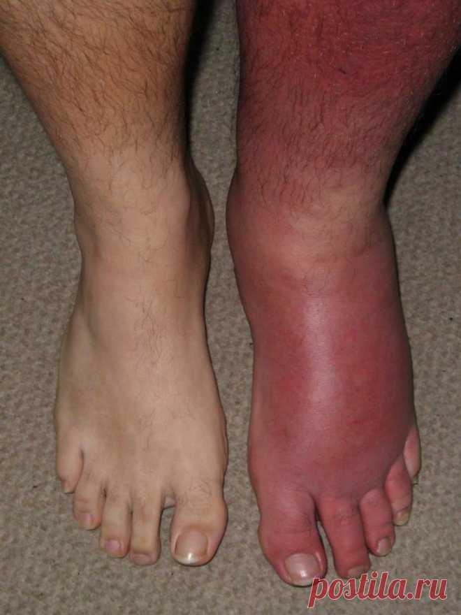 Картинки больная нога