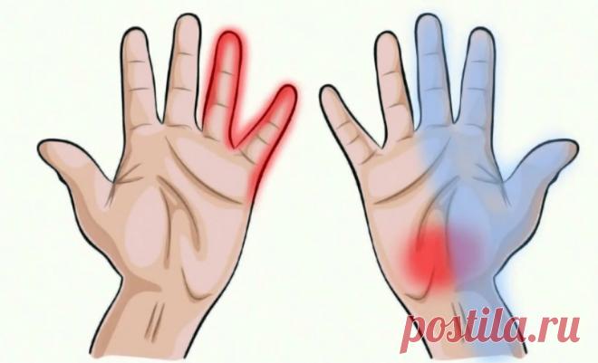 3 основные причины, почему у вас немеют руки | Всегда в форме!