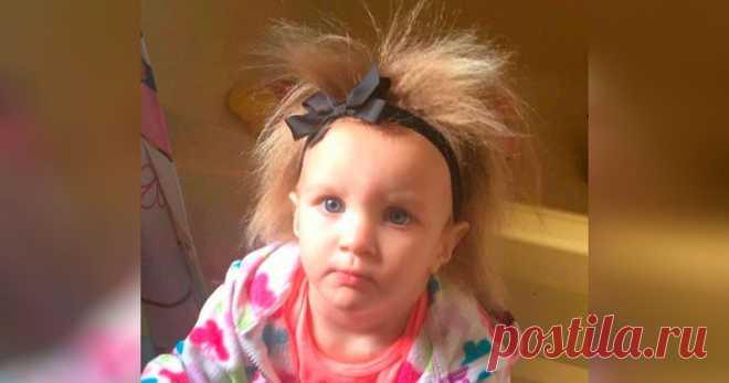 A la chiquitina no le es posible peinarse los cabellos por la enfermedad rara, pero esto le gusta (10 fotos) | el Diablo tomes la muchacha Encantadora desgreñada por nombre de Fibi Brasuel no sabe que tal el peine. Por la desviación rarísima genética pertenece a la categoría pequeña de las personas, cuyos cabellos se distinguen tanto de regular que es más fácil dejarlos en paz, que tratar aunque en cierto modo arreglar. La muchacha, y ella mientras 21 mes, no reconoce el carácter unical, he aquí la mamá no necesita...