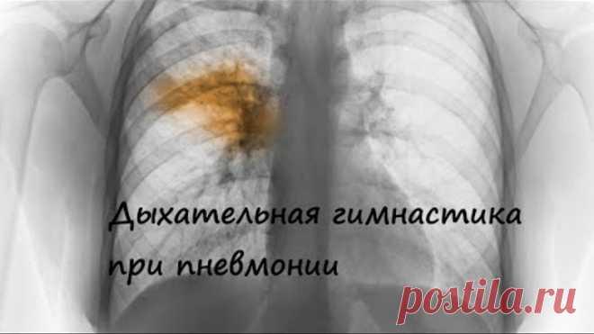 Дыхательная гимнастика при воспалении легких (пневмонии)