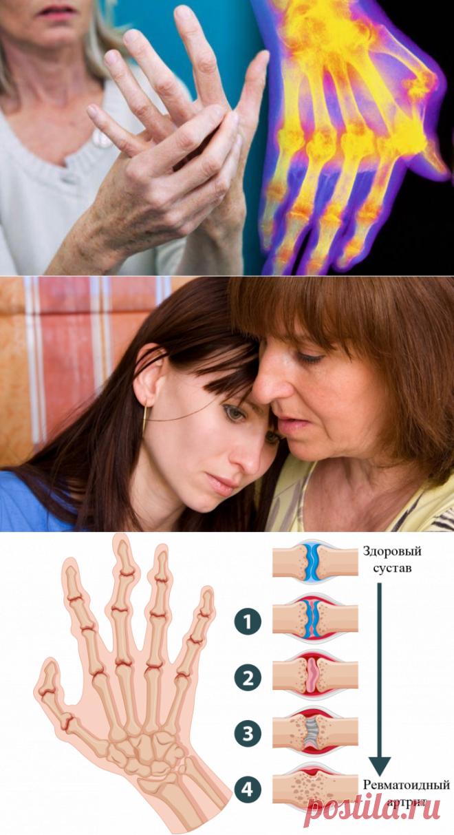 Мне артроз поставили в 50, дочери артрит – в 27 лет! И этот страшный диагноз разделил нашу жизнь на до и после. Но мы нашли средство, которое нас спасло!  ooo Бездействие врачей, тяжелое лечение и страшные осложнения… После первых же симптомов мы пошли ко врачу. Первый наш ревматолог, женщина пенсионного возраста, заявила,   | броши из бисера шестиугольные мотивы крючком для пледов ШАЛИ Пятиугольные крючок  из квадратных мотивов кофты схемы японские Африканские вязания кардиганы регланом