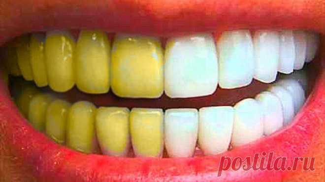 Как отбелить зубы и не нанести им вреда? Рецепт отбеливания и лечения зубов по Неумывакину.