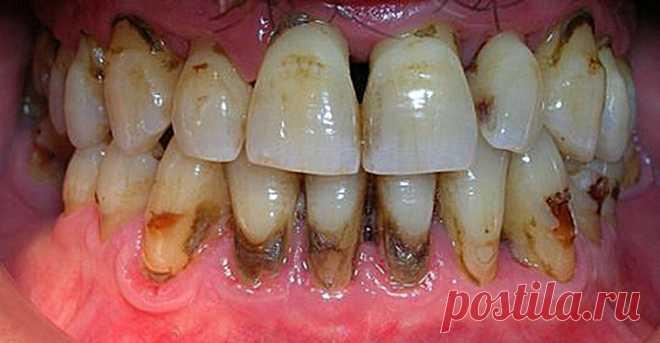 Когда вы увидите этот метод, вы будете сердиться на своего стоматолога за то, что он скрыл это. Вы удалите зубной камень за 2 дня! Вы будете рады узнать этот метод, чтобы устранить зубной камень. Как мы уже говорили, зубной камень — желтоватое вещество, которое накапливается вокруг зубов, особенно когда человек курит. Среди вещей, которые его производят, мы можем выделить потребление сигарет, кофе и табака Если мы хотим, чтобы наш рот был дезинфицирован и был свободен от болезней, мы должны …