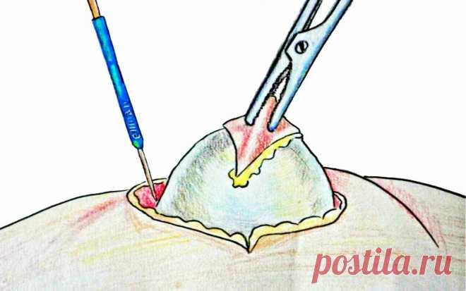 Не рваться к ножу хирурга: вывести жировик поможет тонкая пленка под скорлупой куриного яйца - HeadInsider