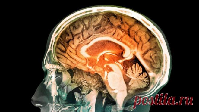 Удивительные метаморфозы мозга, которые происходят у людей, изучающих иностранный язык