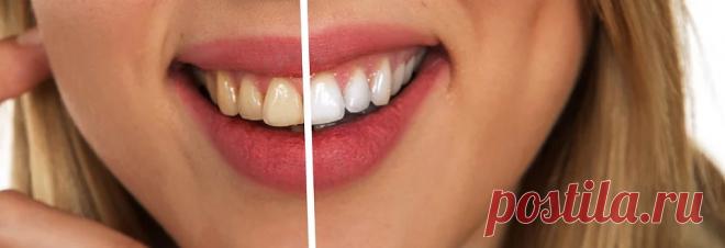 5 способов отбелить зубы самостоятельно, которые действительно работают