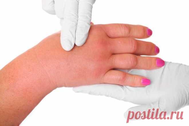 10 важных симптомов заболевания почек