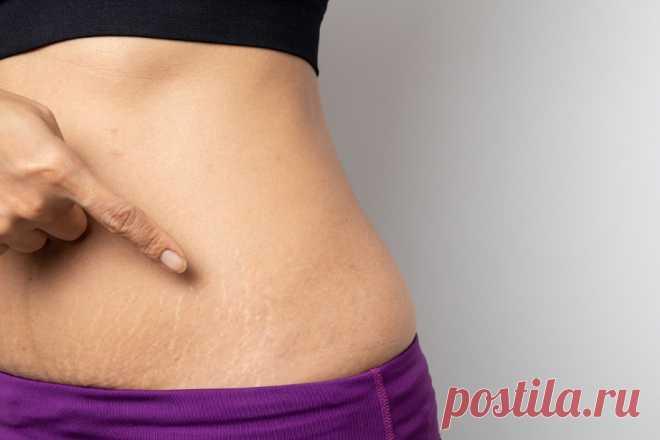 Как избавиться от растяжек после похудения или предотвратить их появление - Чемпионат