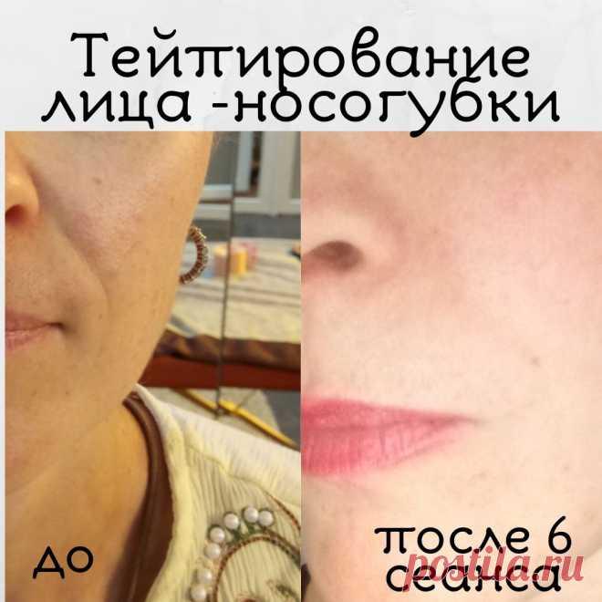 Тейпирование лица - носогубки + детоксикация печени и почек (травяным комплексом)