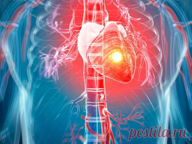 Как быстро распознать «тихий» инфаркт Главной причиной смертности на планете являются сердечно-сосудистые заболевания. Поэтому не стоит обходить вниманием любые проявления кардиологических проблем. Но случается так называемый «тихий» инфаркт, когда симптомы выражены не явно, и человек может даже не понять, что он пережил острый сердечный приступ.