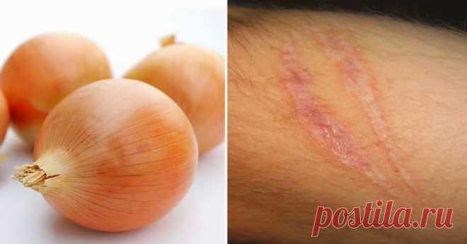 Вот как использовать лук для быстрого устранения рубцов, морщин и пигментных пятен  Результаты просто невероятные: ушли мелкие шрамы и пигментные пятна! Просто и легко! Лук оказывает мощное воздействие на кожу, он способствует регенерации клеток кожи и активизирует выработку коллаге…