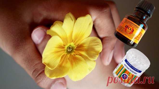 Йодовая сетка: лечение, в домашних условиях